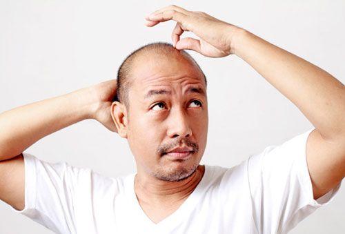 Top 10 Thuốc mọc tóc dành cho nam